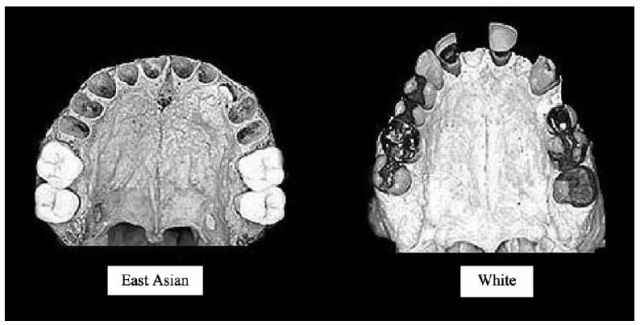 Brain size, IQ, and racial-group differences - Evidence from musculoskeletal traits (Figure 5)
